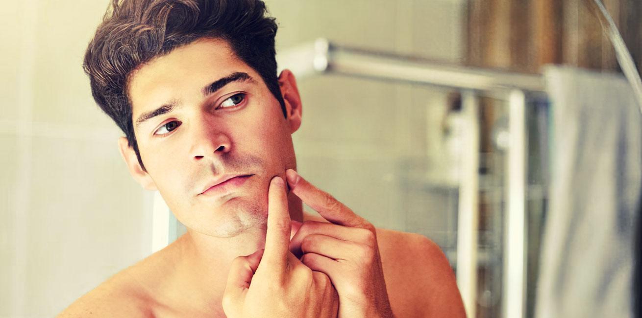 acne-men-img