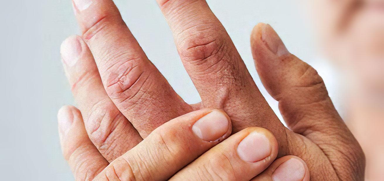 hands-men-treatments-img