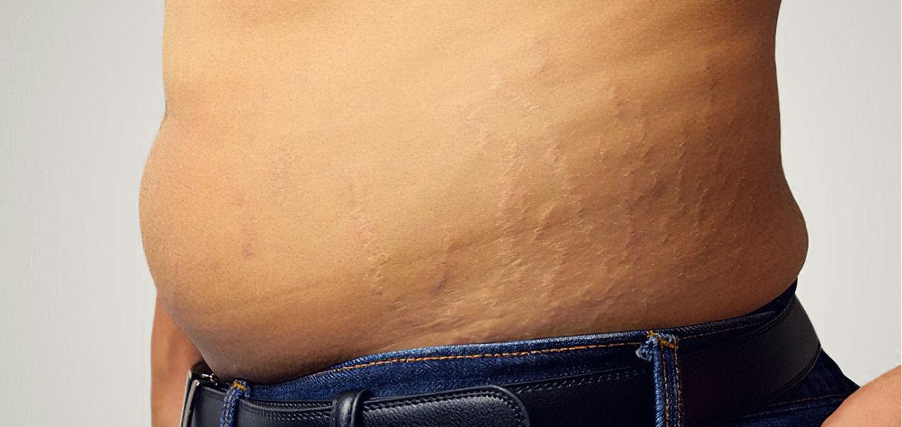 scars-men-img